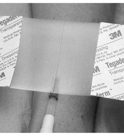 3M™ TEGADERM™ TRANSPARENT FILM DRESSING FIRST AID STYLE